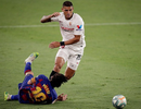 "Lionel Messi ""khoe"" chân đầy sẹo sau trận hòa với Sevilla"