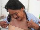 Thương người vợ liệt sỹ nguy kịch vì mắc bệnh ung thư
