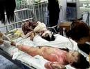 Nghi án bố mẹ chồng đổ xăng đốt con dâu và 2 cháu gái