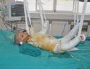 Bé Minh Thư bị bỏng 75% cơ thể đã qua đời