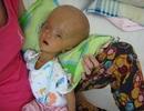 Thương bé trai 5 tháng rưỡi đầu to hơn thân mình