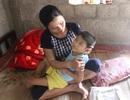 Cha gặp tai nạn, 2 con thơ bị dị tật bẩm sinh rơi vào cảnh đói khát