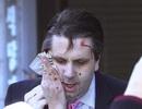 Đại sứ Mỹ bị khâu 80 mũi sau vụ tấn công bằng dao