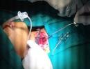 Va chạm giao thông, bé 12 tuổi bị miếng tôn cứa đứt khí quản