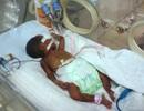 Vụ suýt bị chôn sống: Trẻ vẫn đang trong phòng điều trị đặc biệt