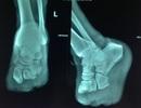Đạp vỏ ốc, bệnh nhân tiểu đường phải tháo khớp bàn chân