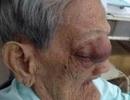 Mổ khối u nhầy, cứu mẹ Việt Nam anh hùng hơn 100 tuổi
