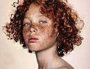 Bộ hình ghi lại vẻ đẹp của những khuôn mặt tàn nhang