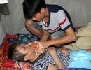 Nghiệt ngã người phụ nữ biến dạng đầu vì tai nạn giao thông, nằm nhà chờ chết