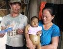 Bé 9 tháng tuổi bị teo ống mật bẩm sinh được bạn đọc báo Dân trí đưa vào TPHCM chữa trị