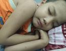 Cha mất sớm, bé trai 7 tuổi đối diện cái chết vì không tiền ghép tủy