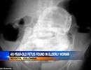 Phát hiện thai nhi hóa đá trong bụng cụ bà 84 tuổi