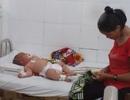 Bé trai 5 tháng tuổi bị nghi nhiễm não mô cầu đầu tiên ở Đắk Lắk