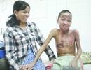 Trao hơn 30 triệu đồng đến cậu bé Cơ Tu bị bỏng nặng