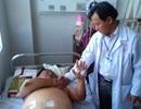Một bệnh nhân bị xương cá tra đâm thủng ruột non