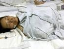 Hà Nội: Mâu thuẫn gia đình, chồng chém gần đứt lìa 4 ngón tay vợ