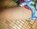 Vụ bé 3 tuổi bị véo, tát bôm bốp khi đang ăn: Đình chỉ cơ sở giáo dục