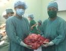 Phẫu thuật khối u hơn 10kg trong bụng bệnh nhân
