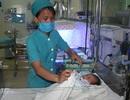 Một trong bốn bé gái sinh non phải phẫu thuật cắt ruột