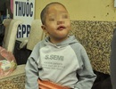 Hà Nội: Bé gái năm tuổi bị xâm hại nghiêm trọng