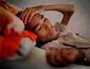 Bệnh nhân HIV nên dùng thuốc kháng retrovirus sớm