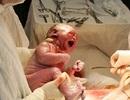 Nạn nạo phá thai giảm, vô sinh tăng