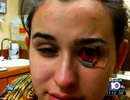 Suýt phải bỏ mắt vì mang kính áp tròng