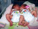 Cứu sống hai trẻ song sinh dính liền nhau hiếm gặp