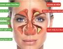 Làm gì khi nghẹt mũi xoang?