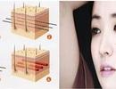 Căng da mặt bằng chỉ với bác sỹ Hàn Quốc