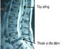 Thoát vị đĩa đệm: Từ chẩn đoán đến điều trị