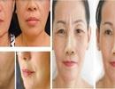 Căng da mặt bằng chỉ uy tín tại Hà Nội