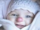 """Em bé """"mũi hươu"""" được phẫu thuật thành công"""