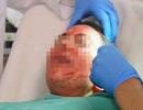 Tiếp cận công nghệ kinh rợn dùng máu người tái tạo da ở Sài Gòn