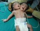 Sinh bé 2 đầu vì không có tiền siêu âm phát hiện dị tật thai nhi