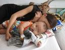 Cứu sống bé trai bệnh sởi biến chứng nặng