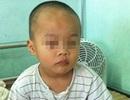 Cấp cứu kịp thời bé trai 3 tuổi bị xoắn tinh hoàn