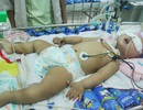 Trao hơn 21 triệu đồng đến cháu bé bị tay chân miệng nặng