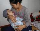 Bé 2 tuổi bị rối loạn chuyển hóa bẩm sinh đã không còn