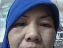 """Một """"ô sin"""" Việt phải làm kiệt sức còn bị chủ đánh sưng mặt ở Saudi Arabia"""