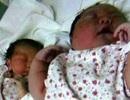 Bé sơ sinh chào đời nặng hơn 6 kg