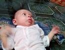 Bé gái 5 tháng tuổi khốn khổ với đủ thứ bệnh hành hạ cơ thể