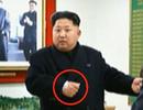 """Xuất hiện """"vật lạ"""" trên cổ tay ông Kim Jong-un"""