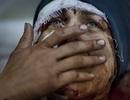 Những bức ảnh kinh hoàng nhất năm 2013
