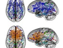 Bằng chứng về khác biệt não bộ giữa nam và nữ