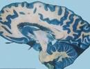 Ấu dâm là bệnh từ trong não?