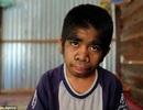 """""""Cậu bé người sói"""" được tôn sùng như vị Thánh ở Indonesia"""