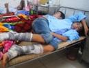 Đốt lửa trại, hơn 70 người nhập viện vì bỏng xăng