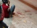 Truy sát như phim hành động ở Sài Gòn, nam thanh niên bị chém rớt tay