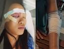 20 thanh niên vác mã tấu truy sát kinh hoàng trước Bệnh viện Từ Dũ